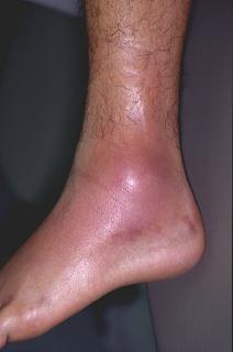Ankle-Sprain-Figure-2