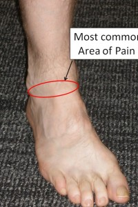 Figure-1-Ankle-Impingement-Pain-Location