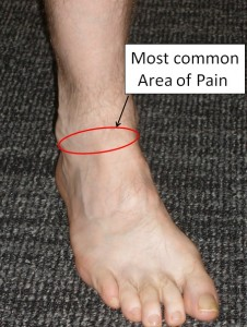 Ankle Impingement