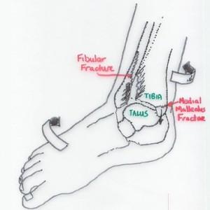 Foot Injury