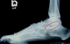 Subtalar Arthritis