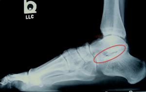 Figure-1-Subtalar-Arthritis-300x189