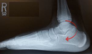 Figure-2-C-Sign-Talo-Calcaneal-Coalition-300x175