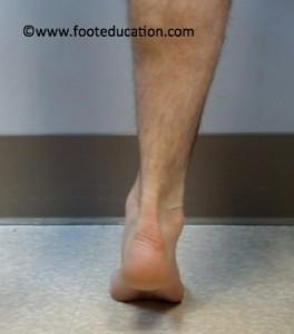 Adult Flatfoot Deformity