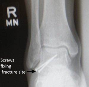 Lateral Talar Process Fractures