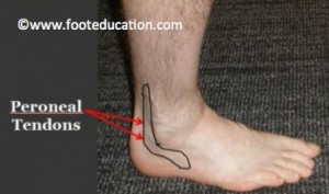 peroneal-tendonitis-figure-1-300x177