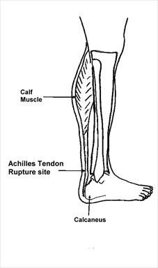 Achilles-Rupture-Anatomy-Diagram-Figure-1_thumb