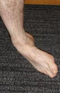 Ankle Sprain Injury