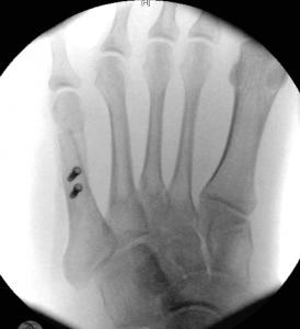Bunionette AP X-ray