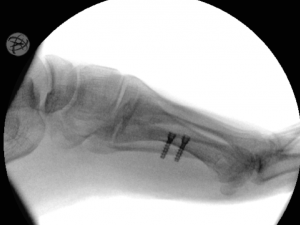 Bunionette Lateral x-ray