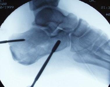 Calcaneus Tuber fragment