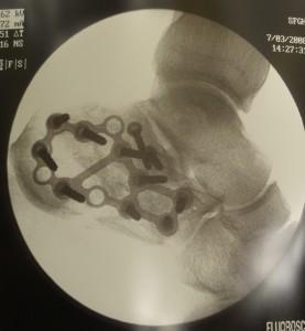 Calcaneus X-ray