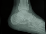 Calcaneus X-ray