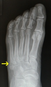 Dancers Fracture AP-X-Ray