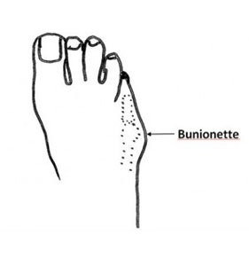 Bunionette Diagram