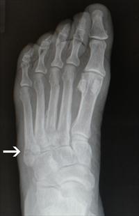 Dancers fracture