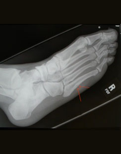 5th Metatarsal Base Fractures