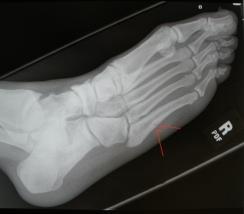Jones Fracture x-ray