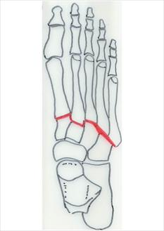 Figure-1A-Lisfranc-Joint_thumb