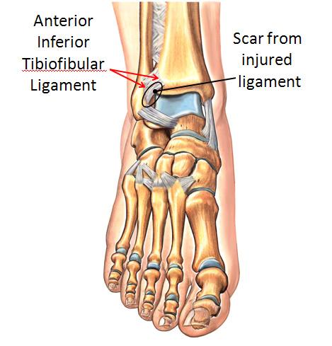 Scarred AnteriorInferior Tibiofibular Ligament