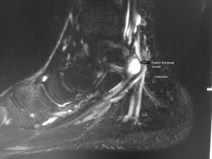 Figure-3-Tarsal-Tunnel-Syndrome-Ganglion-Panchbhavi-04-19-2014-300x225