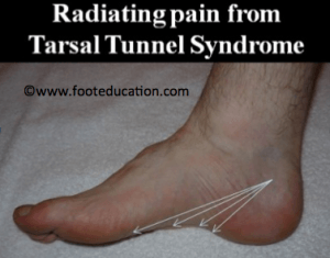 tarsal-tunnel-syndrome-Figure-1-300x235