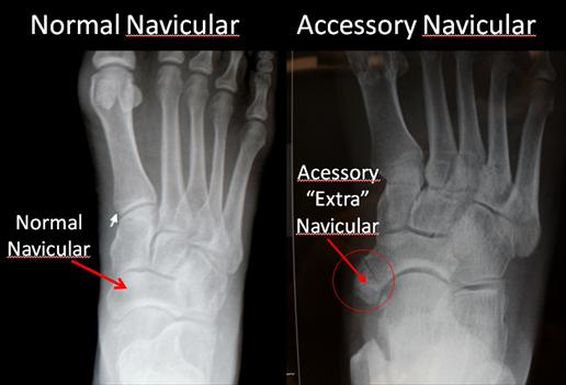 Figure-1-Accessory-Navicular-Normal-and-Abnormal_thumb
